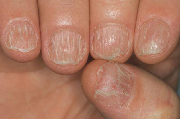 Cura di unallergia dopo prolungamento di unghia